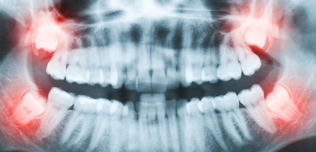 Denti giudizio - Dott.ssa Rosita Pascale | RP Odontoiatria | Dentista Castel San Giovanni
