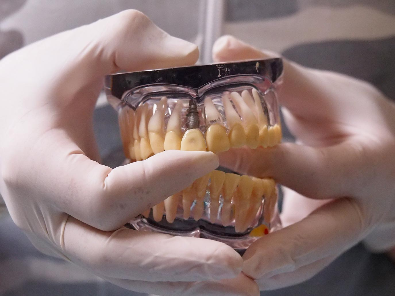 Implantologia - Dott.ssa Rosita Pascale | RP Odontoiatria | Dentista Castel San Giovanni